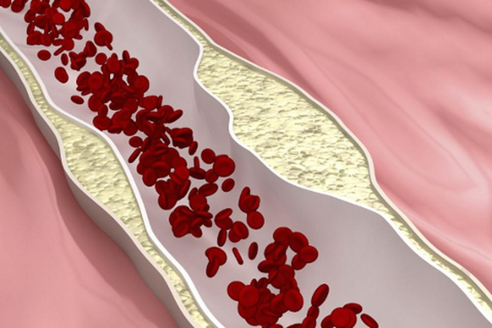 количество холестерина в крови норма